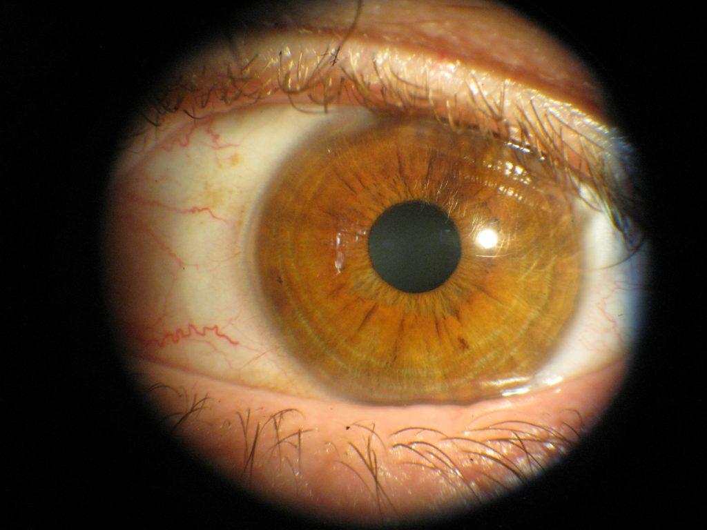 Augendiagnose / Irisdiagnose